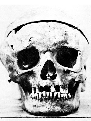 Beethoven-skull-012010